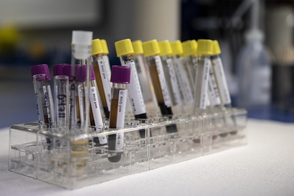 Blockchain benefits in blood transfusion
